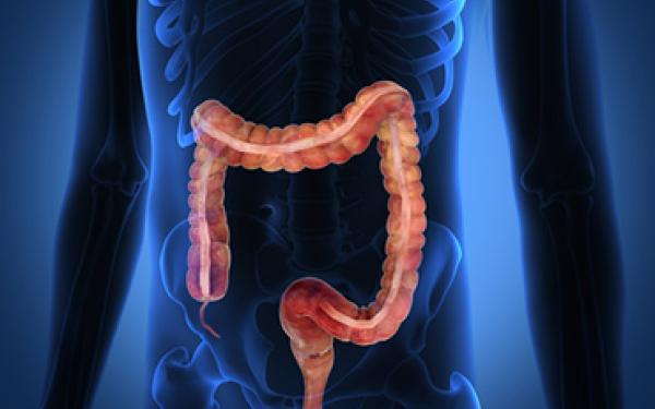 Colorectal Cancer Screening